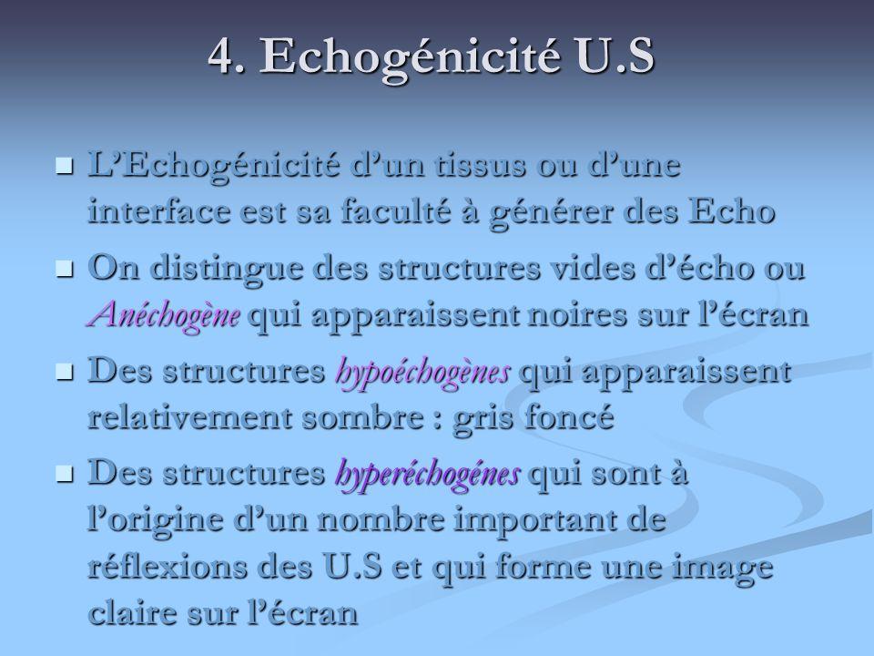4. Echogénicité U.S LEchogénicité dun tissus ou dune interface est sa faculté à générer des Echo LEchogénicité dun tissus ou dune interface est sa fac