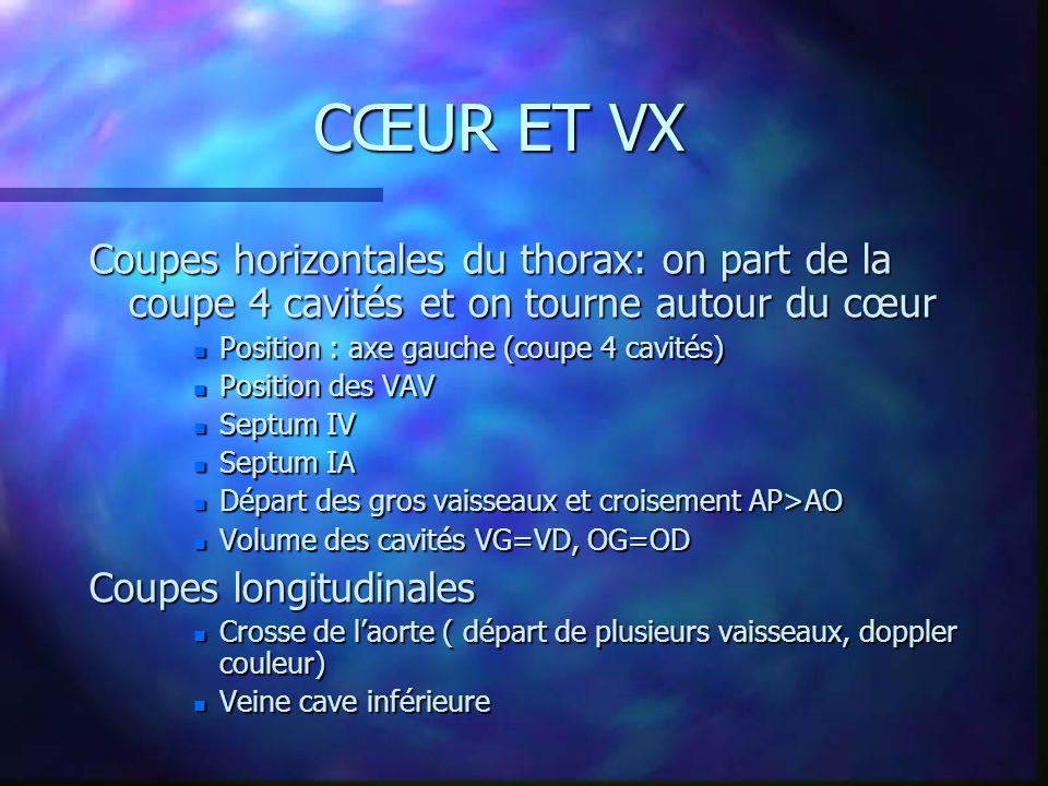 CŒUR ET VX Coupes horizontales du thorax: on part de la coupe 4 cavités et on tourne autour du cœur n Position : axe gauche (coupe 4 cavités) n Positi