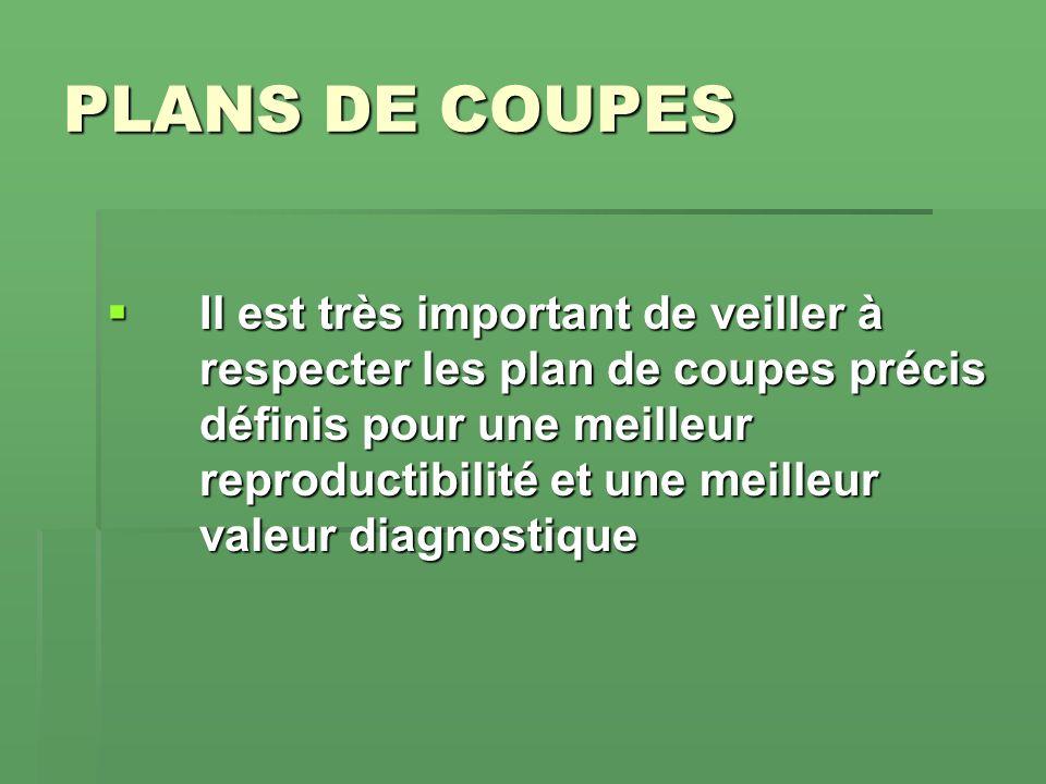 PLANS DE COUPES Il est très important de veiller à respecter les plan de coupes précis définis pour une meilleur reproductibilité et une meilleur vale