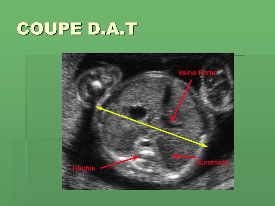 COUPE D.A.T