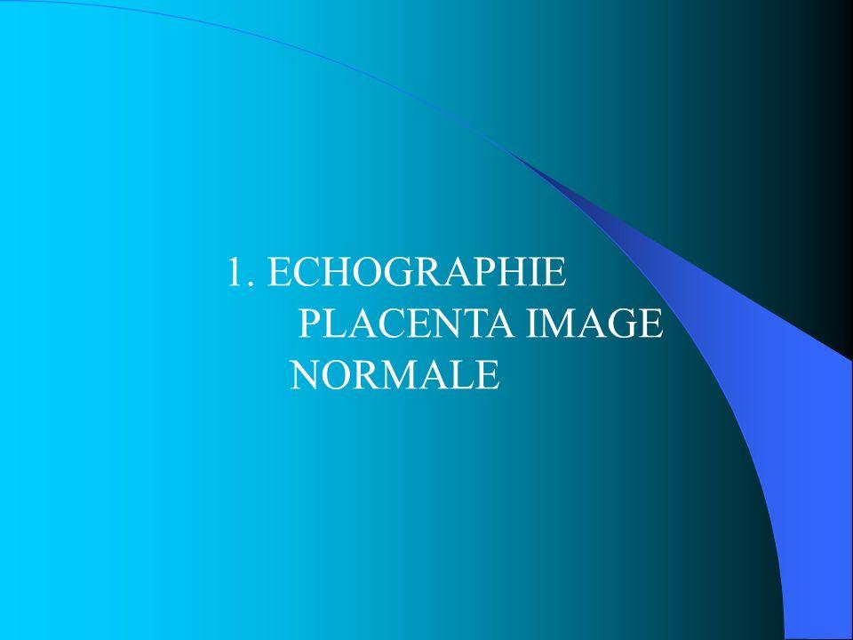 PLACENTA PRAEVIA LOCALISATION PLACENTAIRE 2 ° TRIM Placenta sera localisé : sonde plan de coupe longitudinale * Placenta antérieur : haut de limage * Placenta postérieur : bas de limage