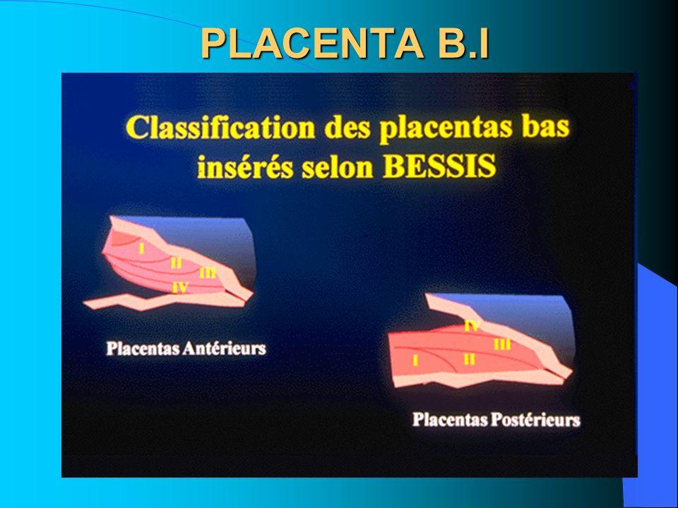 PLACENTA B.I