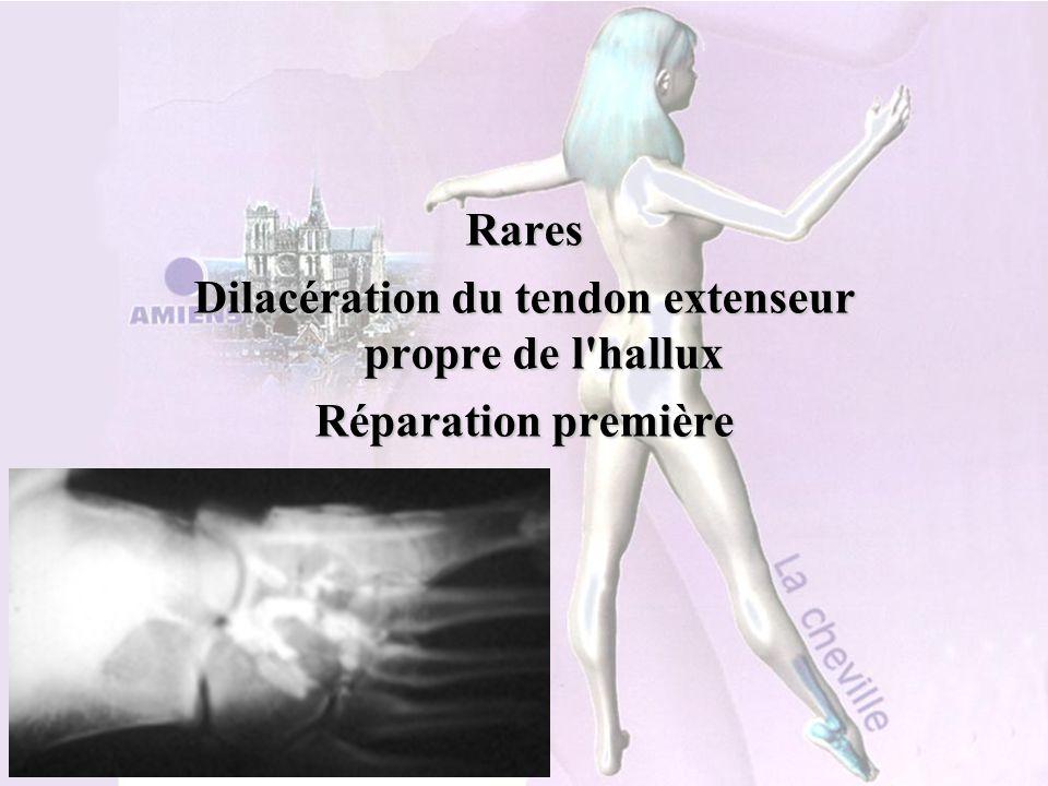 Service d'Orthopédie CHRU AMIENS Rares Dilacération du tendon extenseur propre de l'hallux Réparation première
