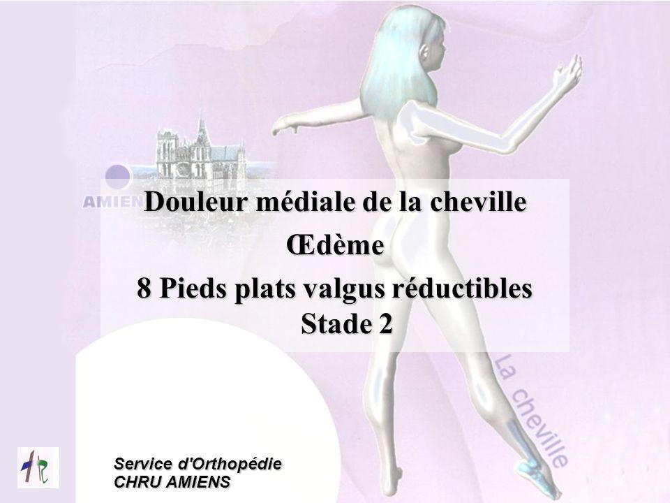 Service d'Orthopédie CHRU AMIENS Douleur médiale de la cheville Œdème 8 Pieds plats valgus réductibles Stade 2