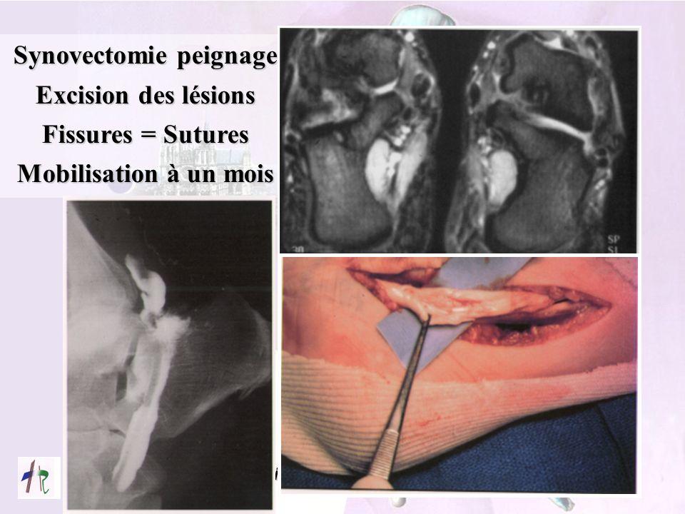 Service d'Orthopédie CHRU AMIENS Synovectomie peignage Excision des lésions Fissures = Sutures Mobilisation à un mois