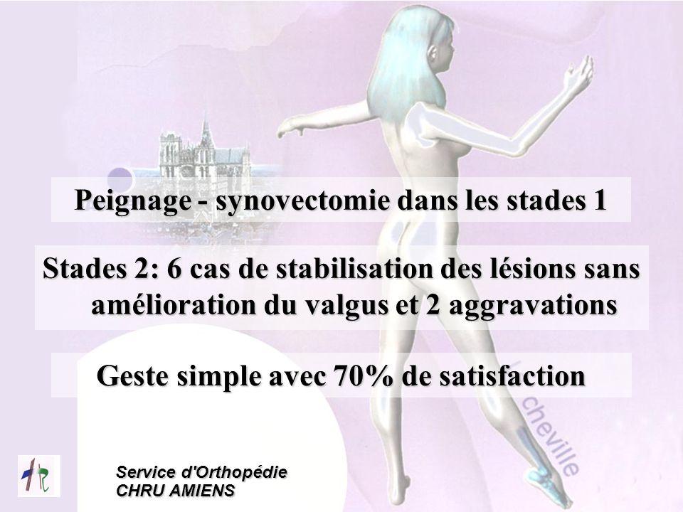 Service d'Orthopédie CHRU AMIENS Peignage - synovectomie dans les stades 1 Stades 2: 6 cas de stabilisation des lésions sans amélioration du valgus et