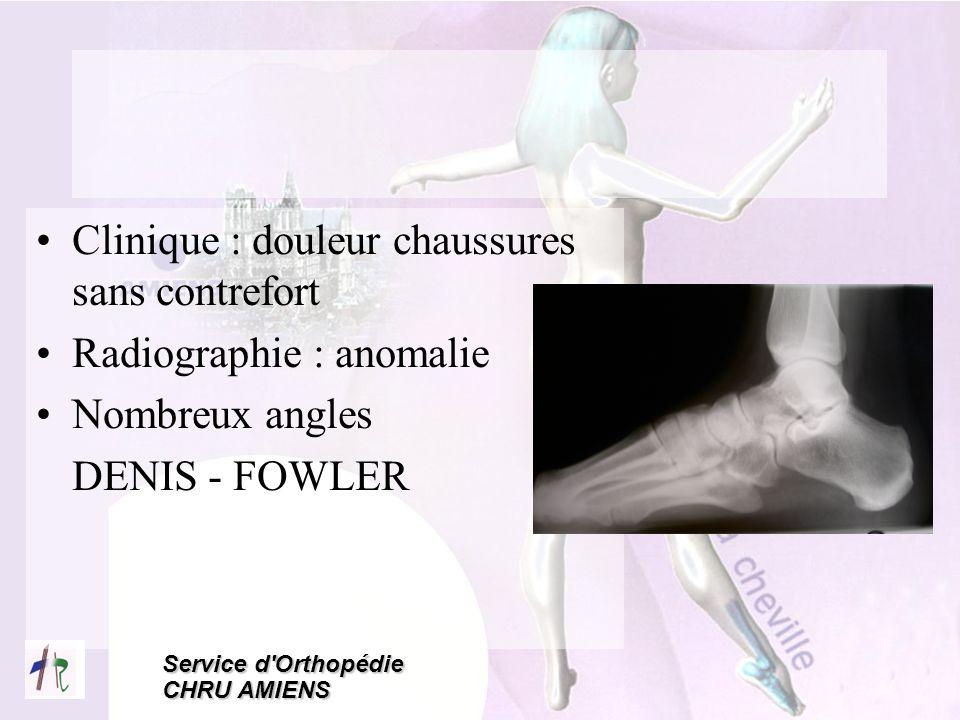 Service d'Orthopédie CHRU AMIENS Clinique : douleur chaussures sans contrefort Radiographie : anomalie Nombreux angles DENIS - FOWLER
