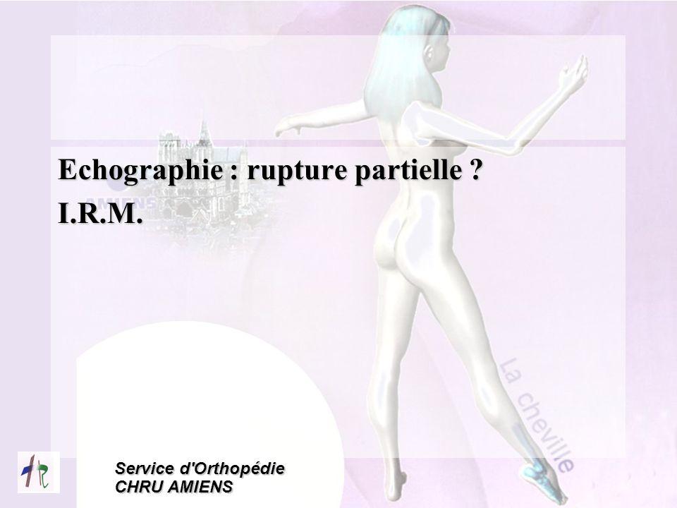 Service d'Orthopédie CHRU AMIENS Echographie : rupture partielle ? I.R.M.