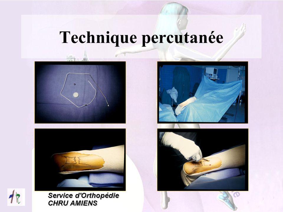 Service d'Orthopédie CHRU AMIENS Technique percutanée