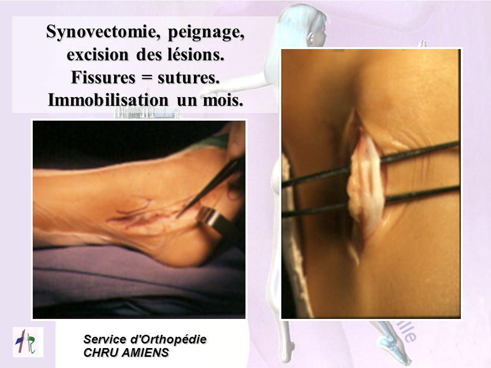 Service d'Orthopédie CHRU AMIENS Synovectomie, peignage, excision des lésions. Fissures = sutures. Immobilisation un mois.