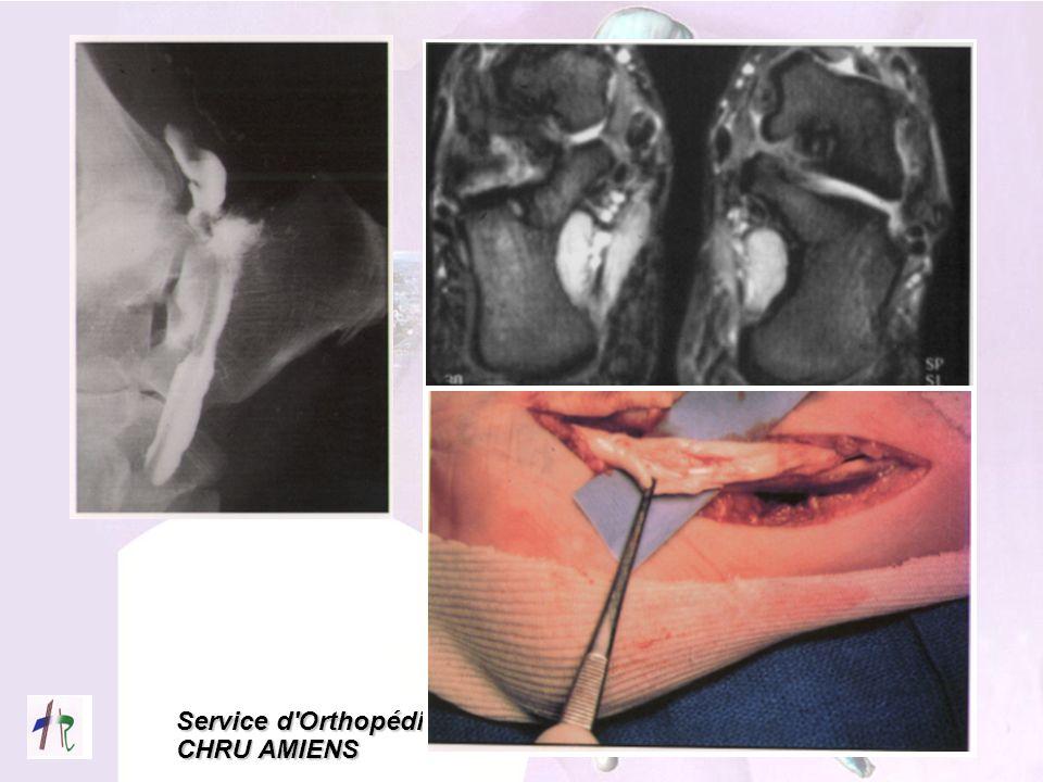 Service d'Orthopédie CHRU AMIENS