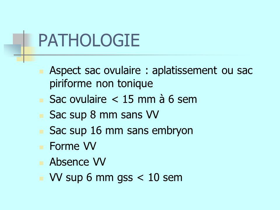 PATHOLOGIE Aspect sac ovulaire : aplatissement ou sac piriforme non tonique Sac ovulaire < 15 mm à 6 sem Sac sup 8 mm sans VV Sac sup 16 mm sans embry