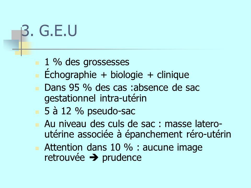 3. G.E.U 1 % des grossesses Échographie + biologie + clinique Dans 95 % des cas :absence de sac gestationnel intra-utérin 5 à 12 % pseudo-sac Au nivea