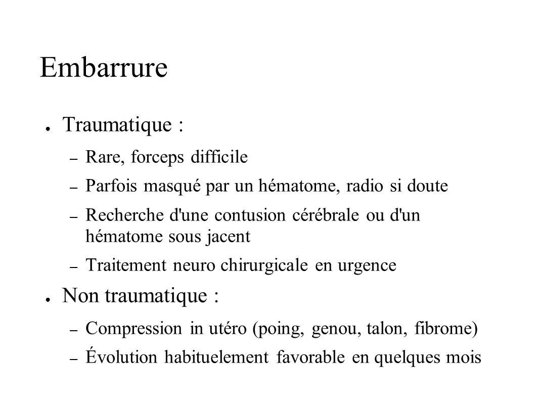 Embarrure Traumatique : – Rare, forceps difficile – Parfois masqué par un hématome, radio si doute – Recherche d'une contusion cérébrale ou d'un hémat