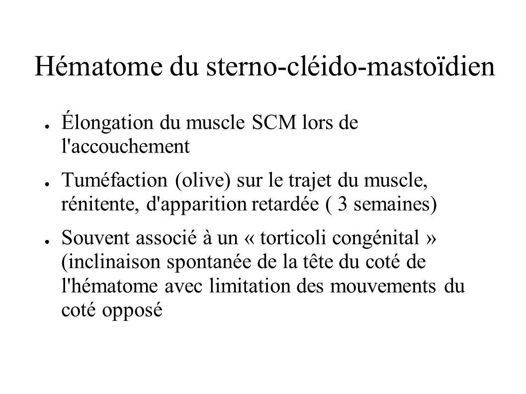 Hématome du sterno-cléido-mastoïdien Élongation du muscle SCM lors de l'accouchement Tuméfaction (olive) sur le trajet du muscle, rénitente, d'apparit