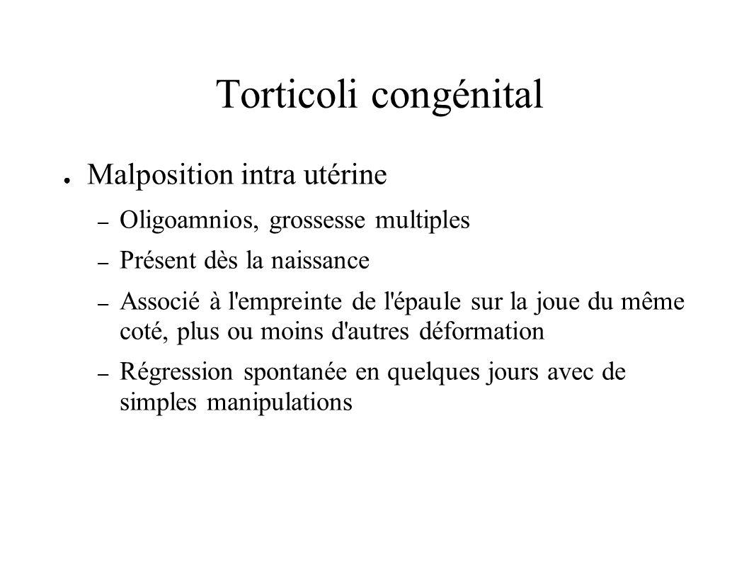 Torticoli congénital Malposition intra utérine – Oligoamnios, grossesse multiples – Présent dès la naissance – Associé à l'empreinte de l'épaule sur l