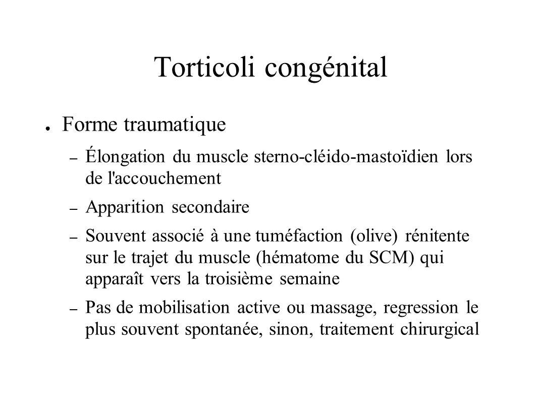 Torticoli congénital Forme traumatique – Élongation du muscle sterno-cléido-mastoïdien lors de l'accouchement – Apparition secondaire – Souvent associ