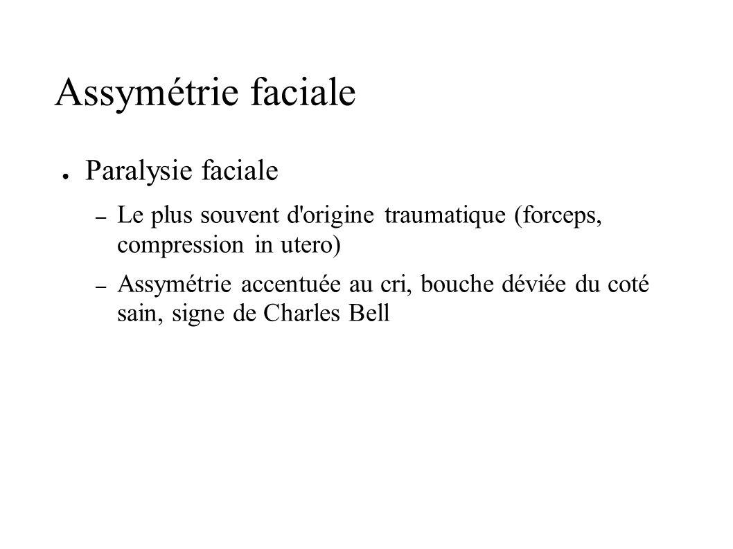 Paralysie faciale – Le plus souvent d'origine traumatique (forceps, compression in utero) – Assymétrie accentuée au cri, bouche déviée du coté sain, s