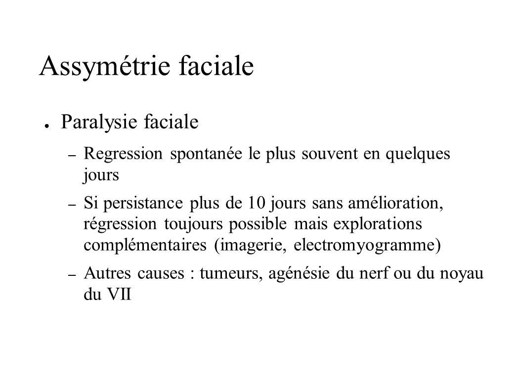 Assymétrie faciale Paralysie faciale – Regression spontanée le plus souvent en quelques jours – Si persistance plus de 10 jours sans amélioration, rég