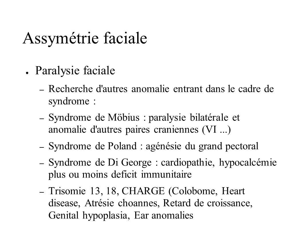Assymétrie faciale Paralysie faciale – Recherche d'autres anomalie entrant dans le cadre de syndrome : – Syndrome de Möbius : paralysie bilatérale et