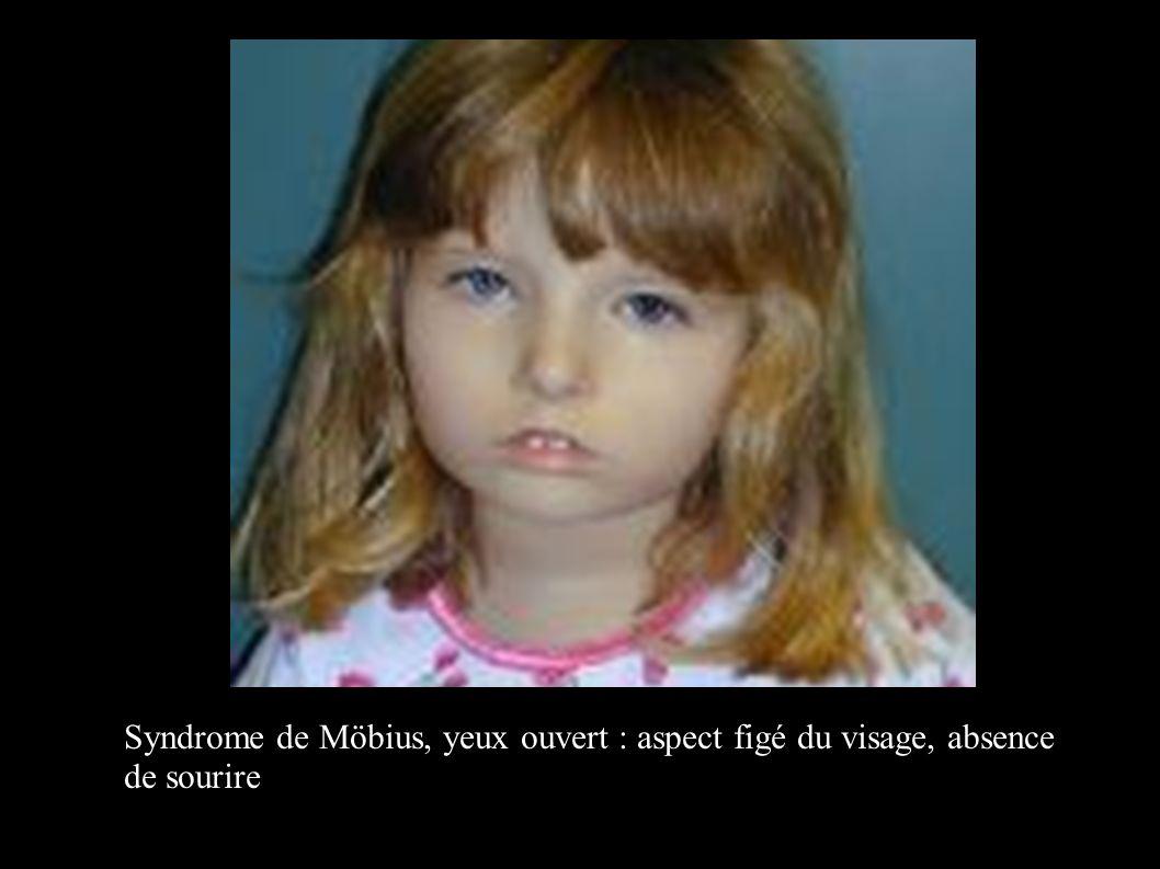 Syndrome de Möbius, yeux ouvert : aspect figé du visage, absence de sourire