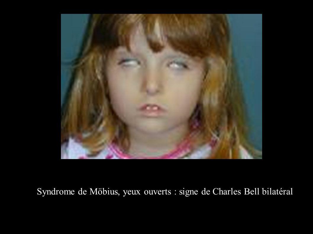 Syndrome de Möbius, yeux ouverts : signe de Charles Bell bilatéral
