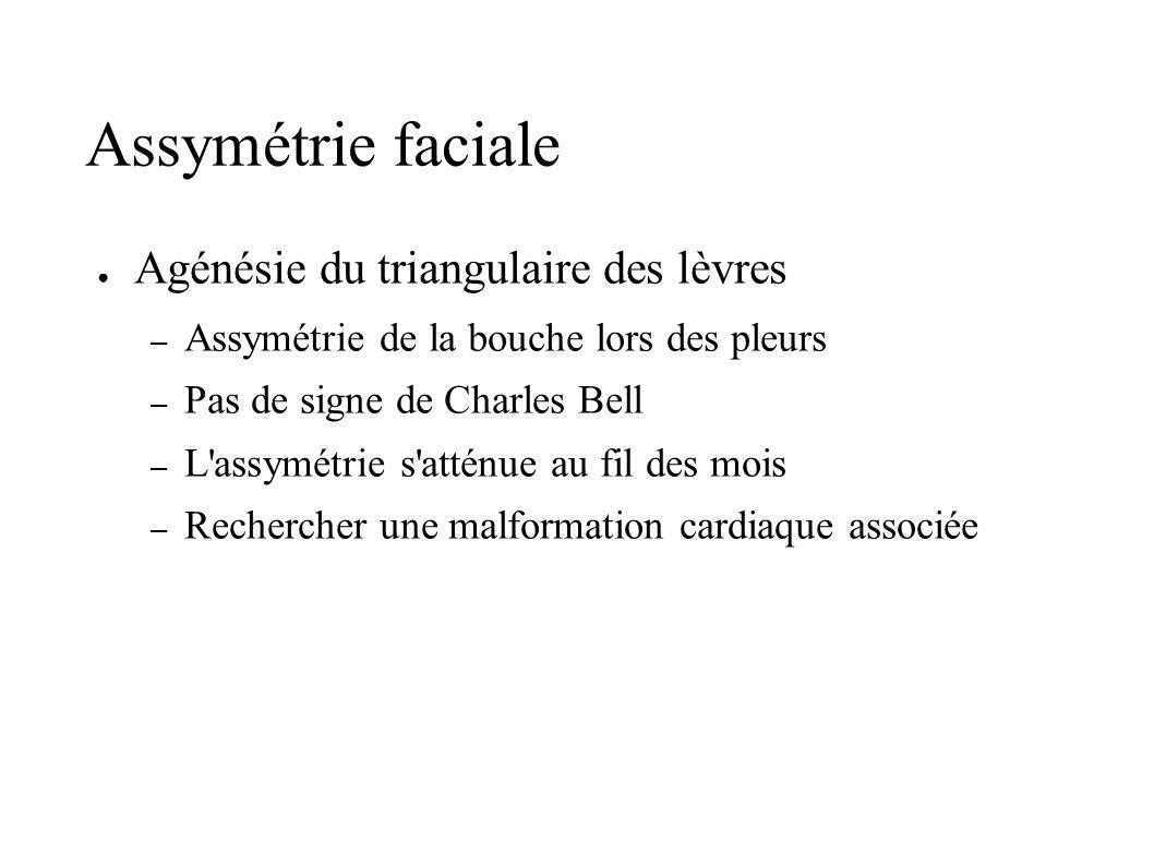Assymétrie faciale Agénésie du triangulaire des lèvres – Assymétrie de la bouche lors des pleurs – Pas de signe de Charles Bell – L'assymétrie s'attén