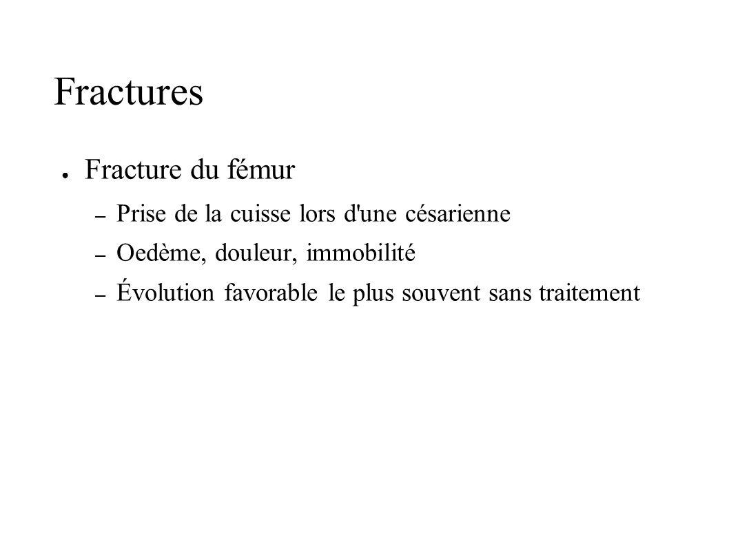 Fractures Fracture du fémur – Prise de la cuisse lors d'une césarienne – Oedème, douleur, immobilité – Évolution favorable le plus souvent sans traite