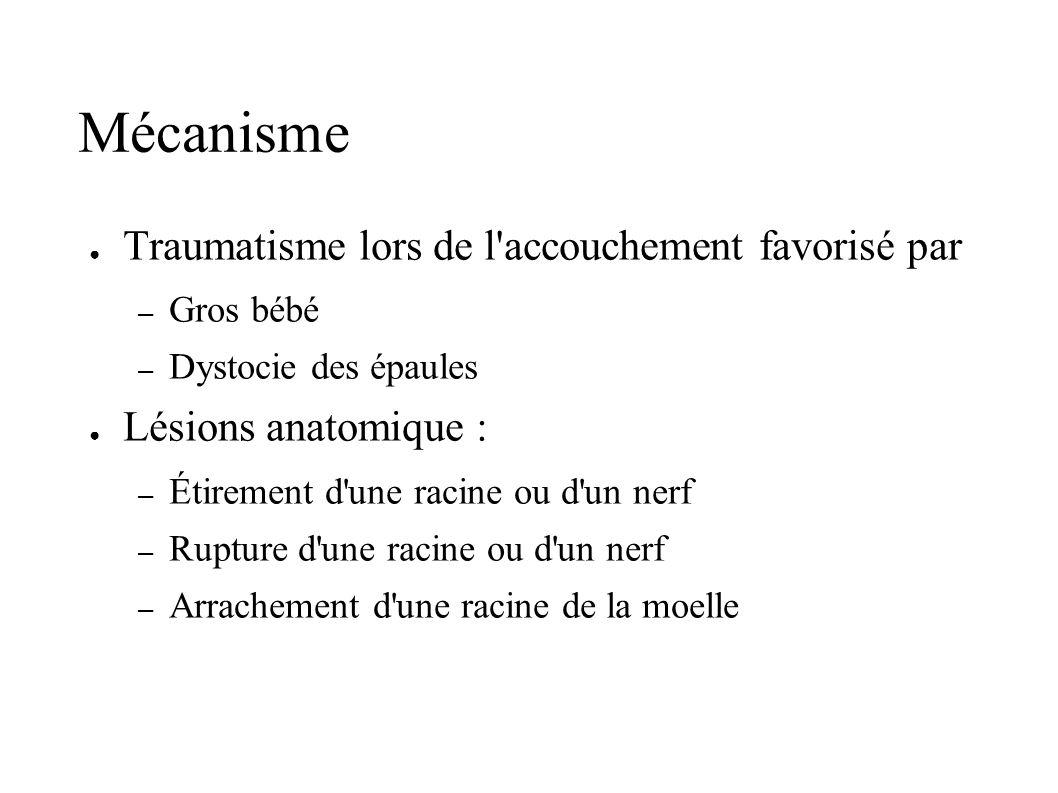 Mécanisme Traumatisme lors de l'accouchement favorisé par – Gros bébé – Dystocie des épaules Lésions anatomique : – Étirement d'une racine ou d'un ner