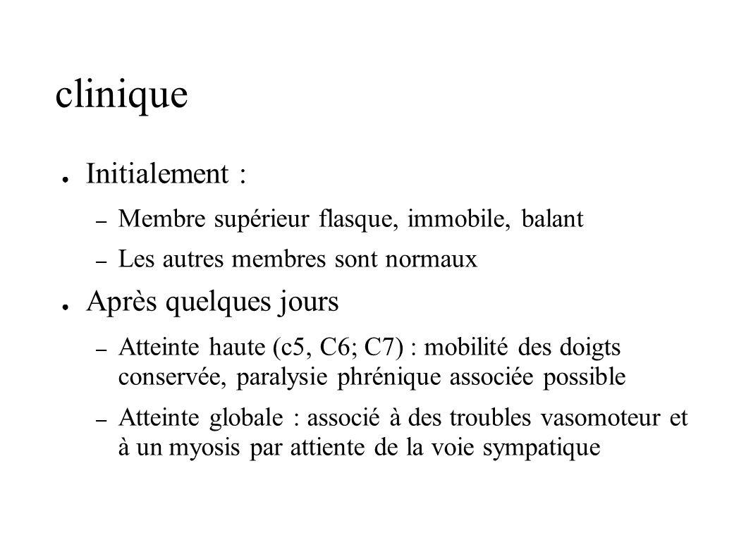clinique Initialement : – Membre supérieur flasque, immobile, balant – Les autres membres sont normaux Après quelques jours – Atteinte haute (c5, C6;