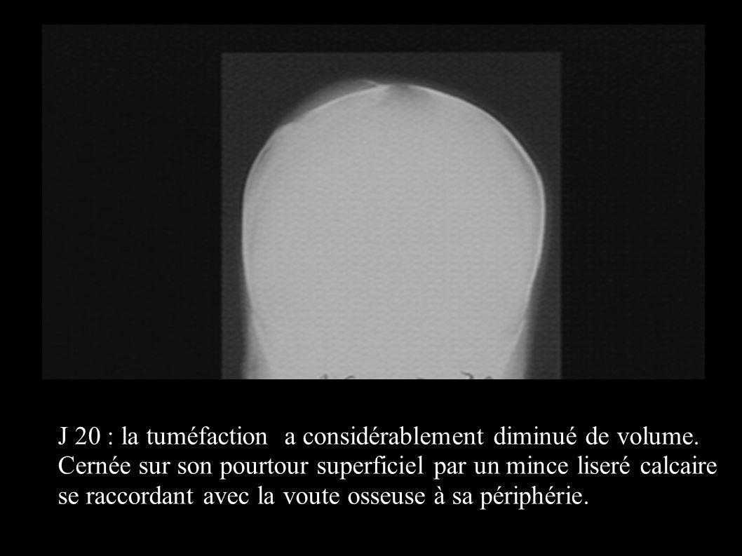 J 20 : la tuméfaction a considérablement diminué de volume. Cernée sur son pourtour superficiel par un mince liseré calcaire se raccordant avec la vou