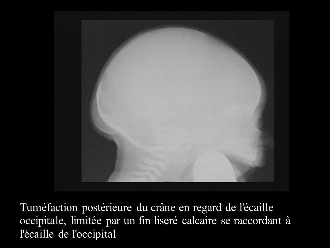 Tuméfaction postérieure du crâne en regard de l'écaille occipitale, limitée par un fin liseré calcaire se raccordant à l'écaille de l'occipital