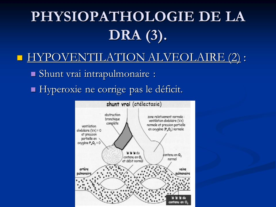PHYSIOPATHOLOGIE DE LA DRA (3). HYPOVENTILATION ALVEOLAIRE (2) : HYPOVENTILATION ALVEOLAIRE (2) : Shunt vrai intrapulmonaire : Shunt vrai intrapulmona