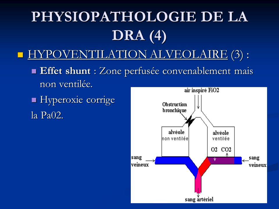 PHYSIOPATHOLOGIE DE LA DRA (4) HYPOVENTILATION ALVEOLAIRE (3) : HYPOVENTILATION ALVEOLAIRE (3) : Effet shunt : Zone perfusée convenablement mais non v