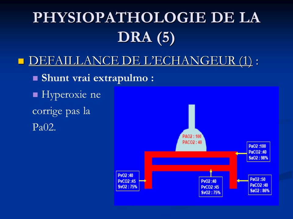 PHYSIOPATHOLOGIE DE LA DRA (5) DEFAILLANCE DE LECHANGEUR (1) : DEFAILLANCE DE LECHANGEUR (1) : Shunt vrai extrapulmo : Hyperoxie ne corrige pas la Pa0