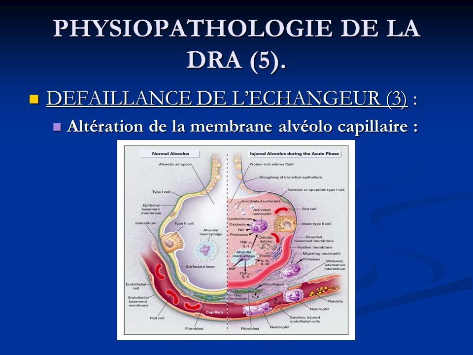 PHYSIOPATHOLOGIE DE LA DRA (5). DEFAILLANCE DE LECHANGEUR (3) : DEFAILLANCE DE LECHANGEUR (3) : Altération de la membrane alvéolo capillaire : Altérat