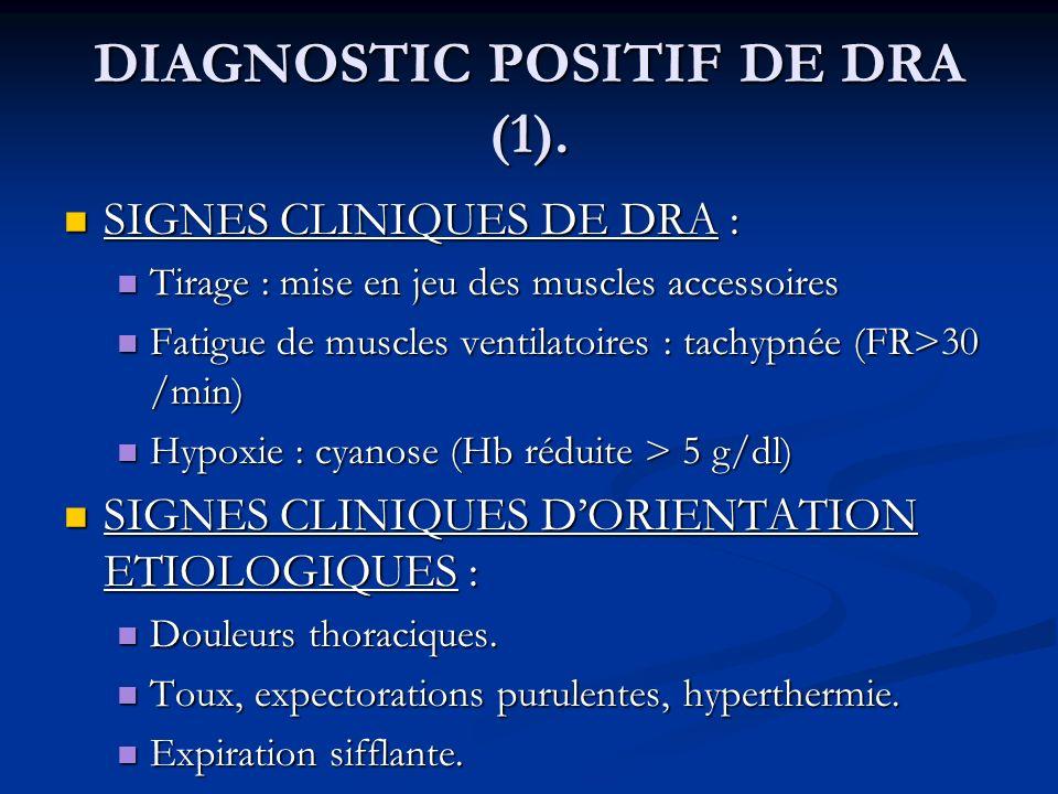 DIAGNOSTIC POSITIF DE DRA (1). SIGNES CLINIQUES DE DRA : SIGNES CLINIQUES DE DRA : Tirage : mise en jeu des muscles accessoires Tirage : mise en jeu d