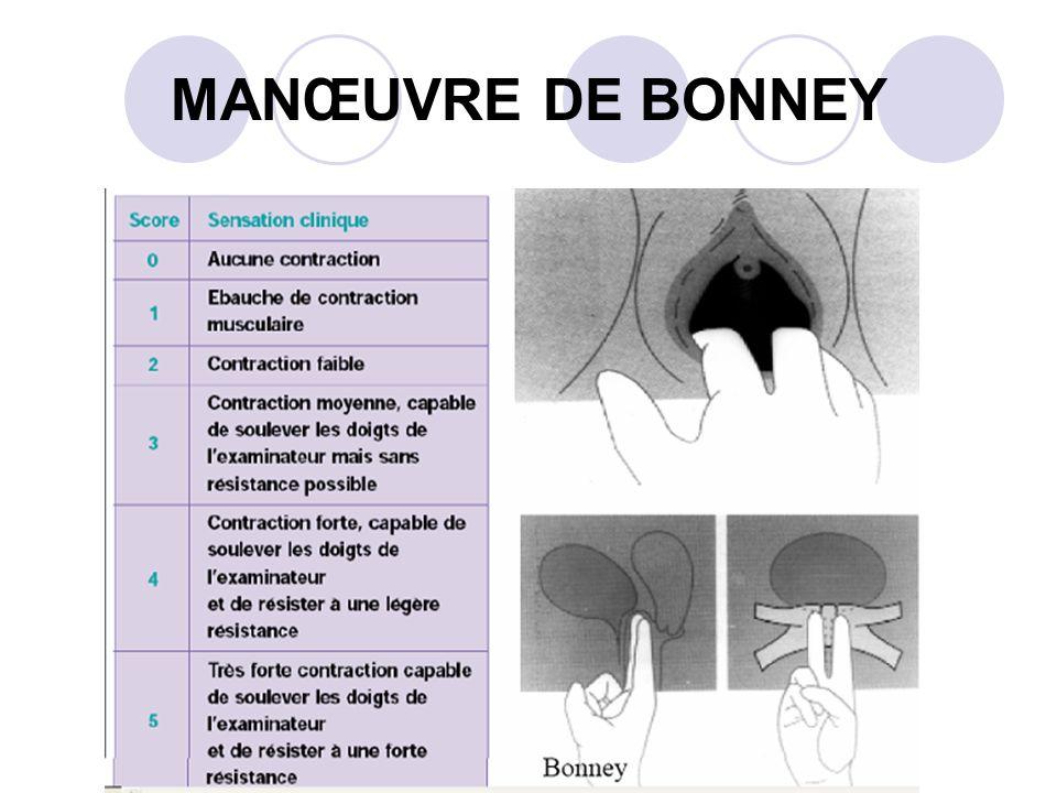 4- EXAMENS COMPLEMENTAIRES Bandelette urinaire ou ECBU: infection urinaire.