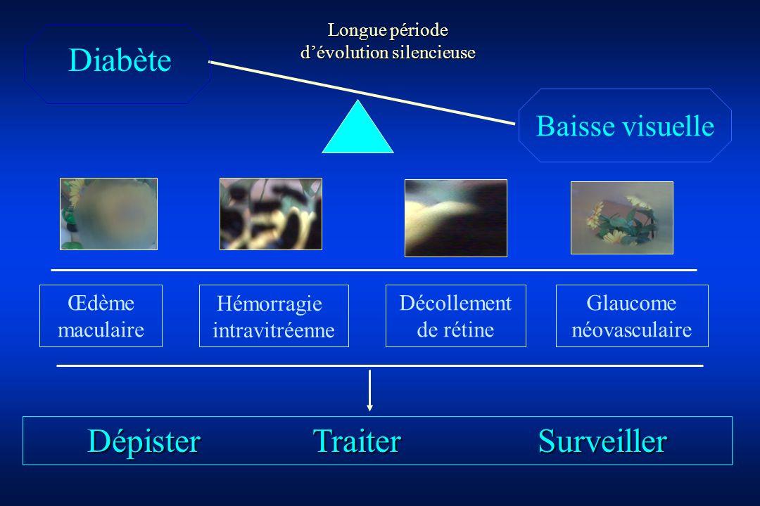 Hémorragie intravitréenne Diabète Baisse visuelle Décollement de rétine Œdème maculaire Longue période dévolution silencieuse Glaucome néovasculaire D