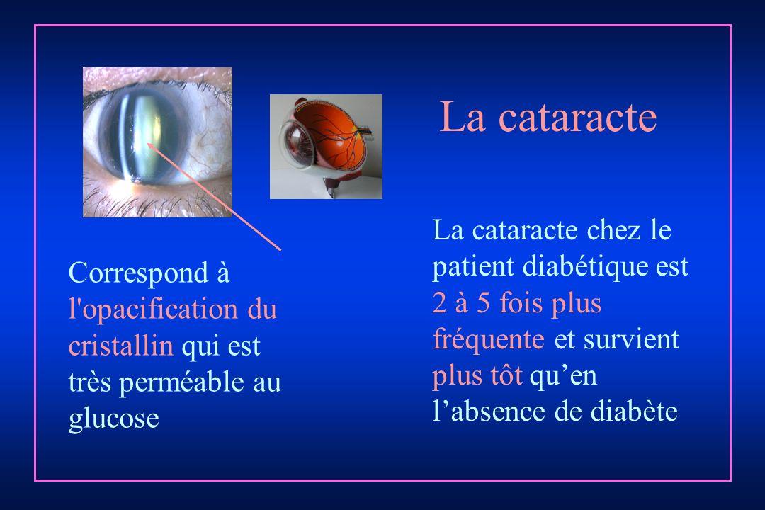 La cataracte chez le patient diabétique est 2 à 5 fois plus fréquente et survient plus tôt quen labsence de diabète Correspond à l'opacification du cr
