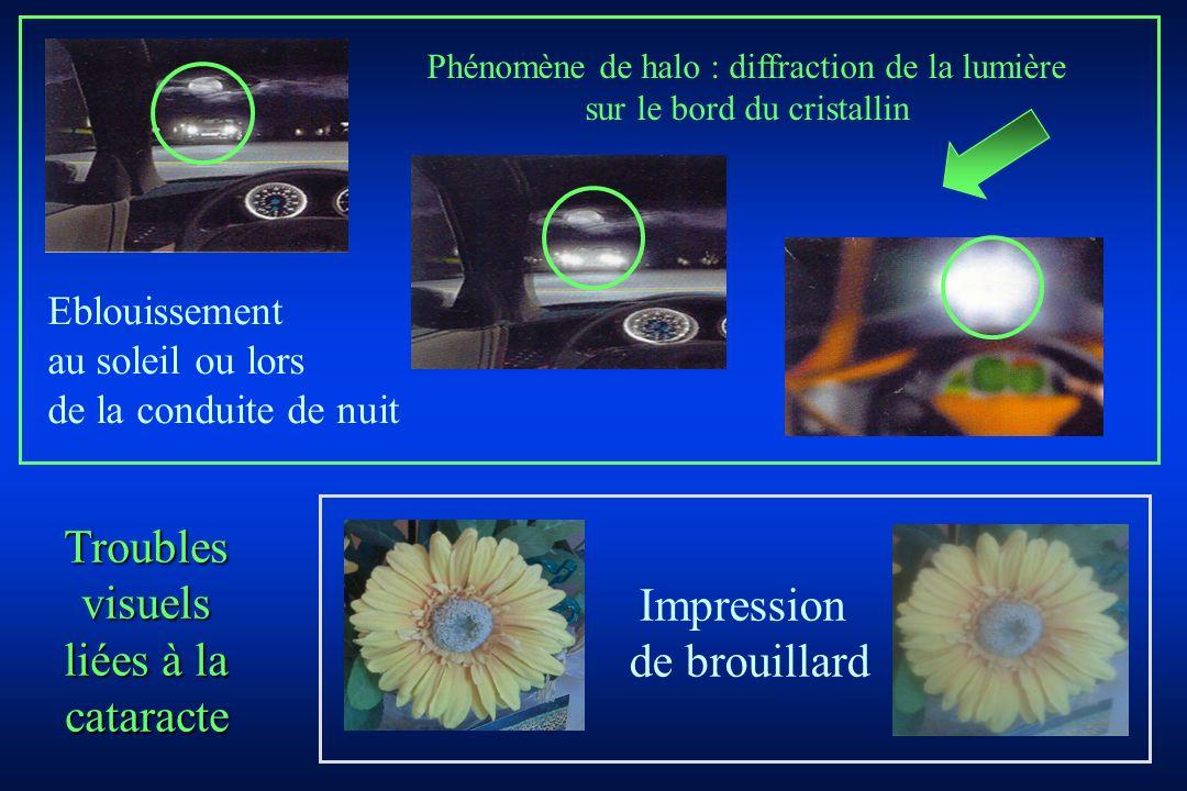 Phénomène de halo : diffraction de la lumière sur le bord du cristallin Eblouissement au soleil ou lors de la conduite de nuit Impression de brouillar