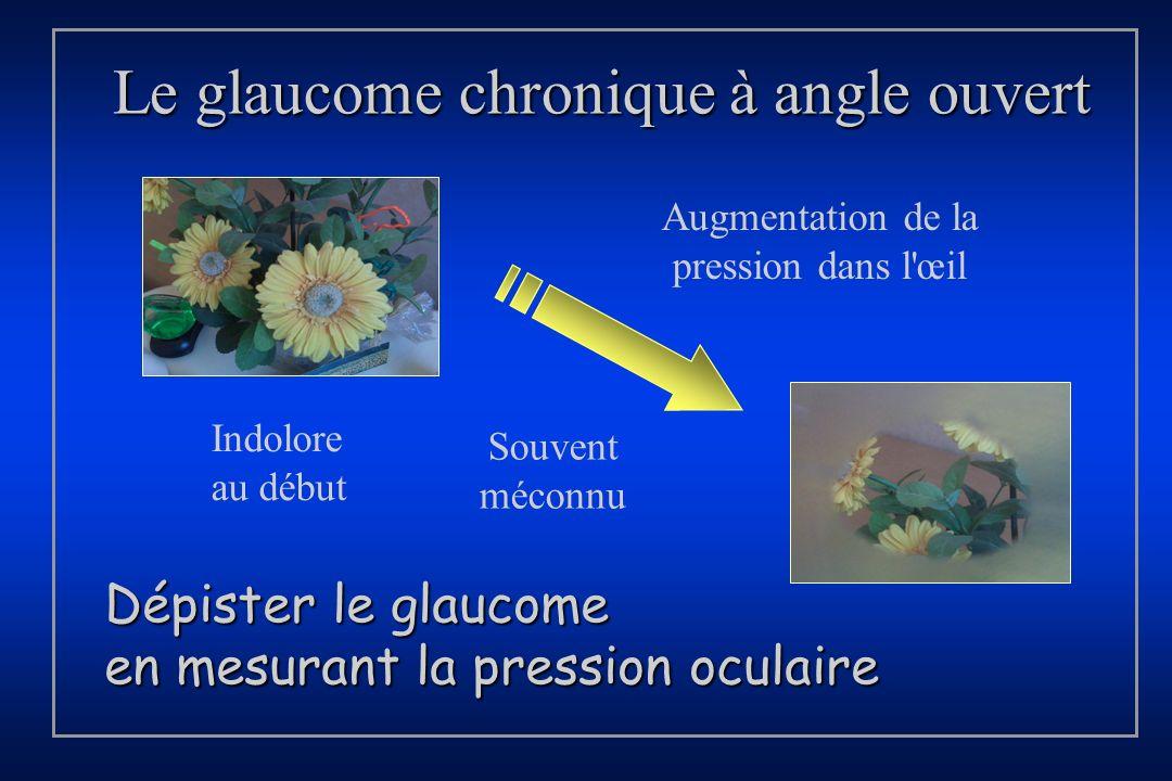 Le glaucome chronique à angle ouvert Augmentation de la pression dans l'œil Souvent méconnu Dépister le glaucome en mesurant la pression oculaire Indo