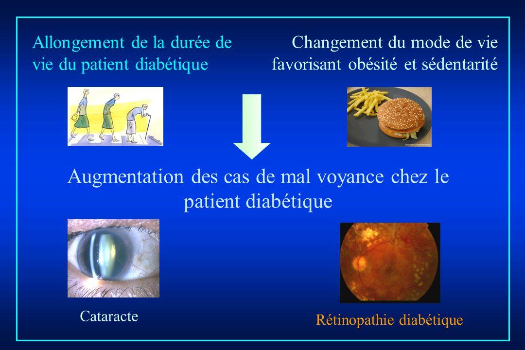 Augmentation des cas de mal voyance chez le patient diabétique Changement du mode de vie favorisant obésité et sédentarité Cataracte Rétinopathie diab