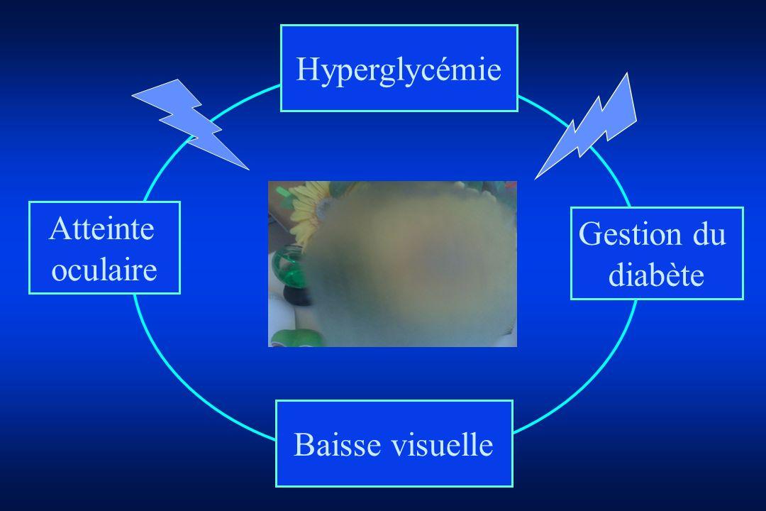 Atteinte oculaire Hyperglycémie Baisse visuelle Gestion du diabète