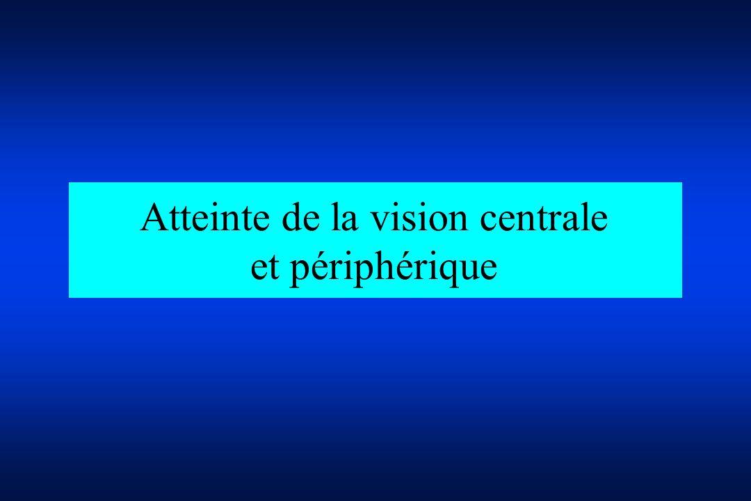 Atteinte de la vision centrale et périphérique