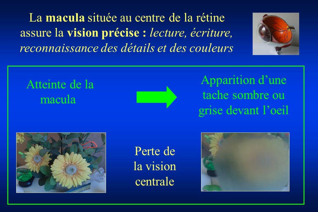 Perte de la vision centrale La macula située au centre de la rétine assure la vision précise : lecture, écriture, reconnaissance des détails et des co