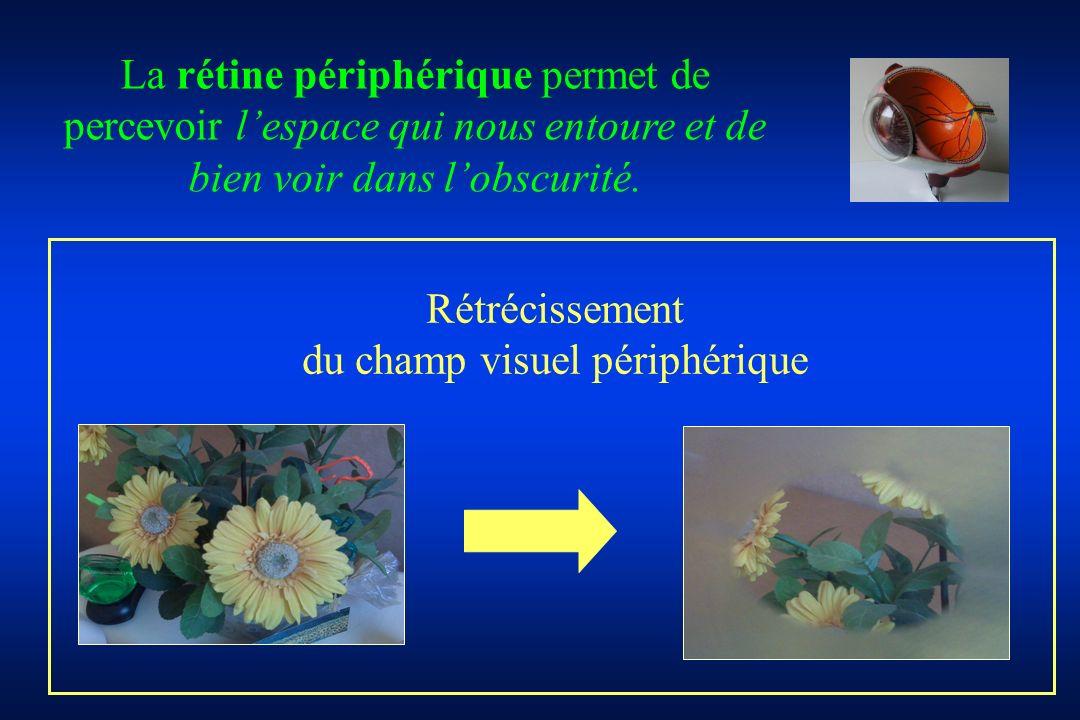 Rétrécissement du champ visuel périphérique La rétine périphérique permet de percevoir lespace qui nous entoure et de bien voir dans lobscurité.