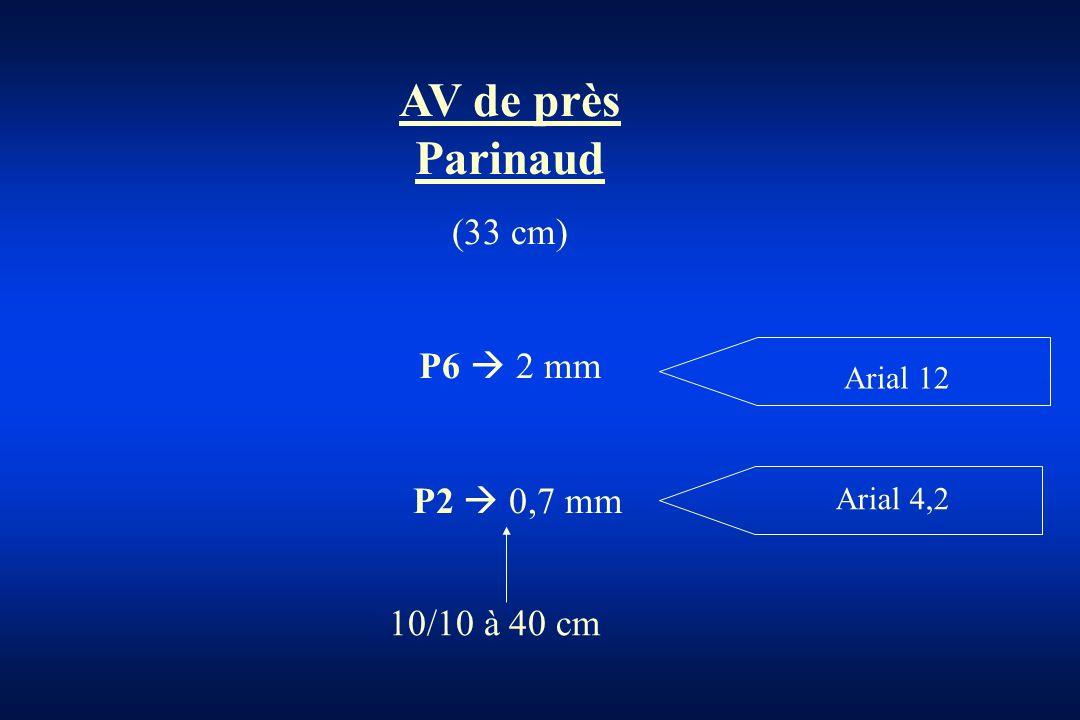 AV de près Parinaud (33 cm) P6 2 mm P2 0,7 mm Arial 12 Arial 4,2 10/10 à 40 cm