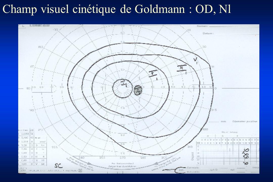 Champ visuel cinétique de Goldmann : OD, Nl