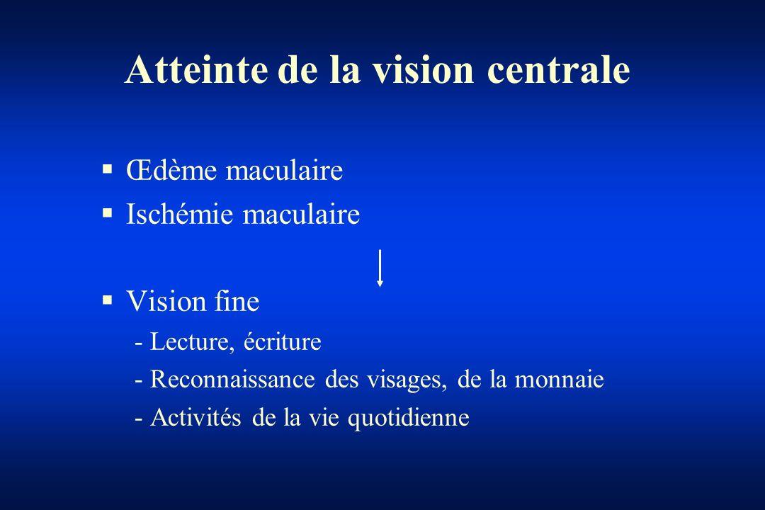 Atteinte de la vision centrale Œdème maculaire Ischémie maculaire Vision fine - Lecture, écriture - Reconnaissance des visages, de la monnaie - Activi
